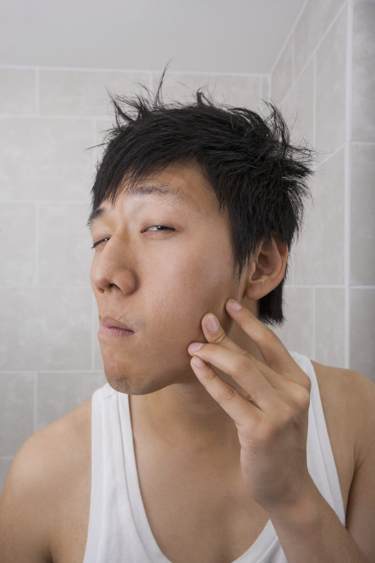 Remove Acne through Skin Care